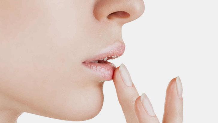 Трещины на губах — как от них избавиться?