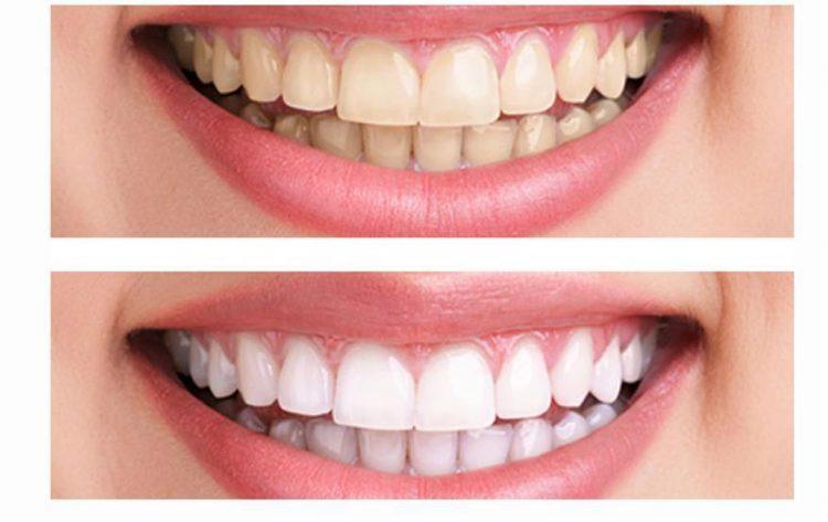Отбеливание зубов в домашних условиях, 3 способа